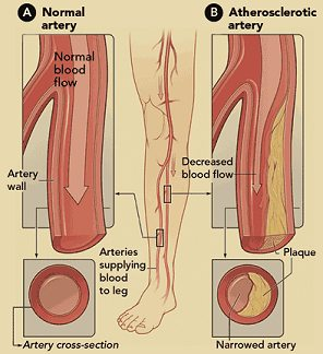 Normal and abnormal arteries